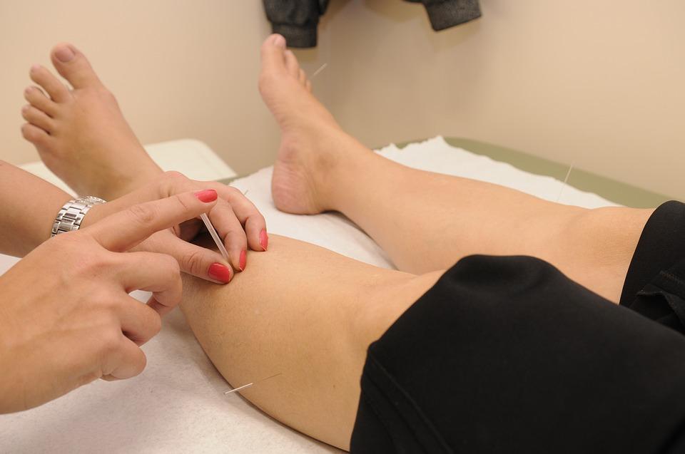 L'acupuncture corrige les blocages du qi qui causent ces douleurs et, lorsqu'elle est utilisée correctement, elle peut réduire l'hypersensibilité associée à la douleur neuropathique (Image: Pixabay)