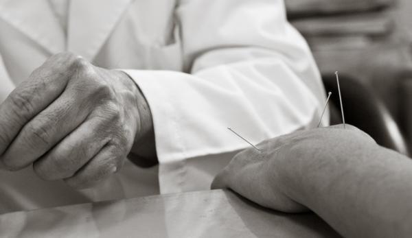 L'acupuncture existe depuis des milliers d'années et est l'un des cinq piliers de la médecine traditionnelle chinoise (MTC). (Image : Vivian Chen / Flickr)