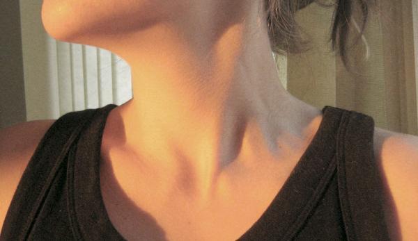 La mousse d'Irlande a la capacité de réguler les hormones thyroïdiennes. (Image : FotoFyl/Erifyli TsavdariviawikimediaCC BY 2.0)