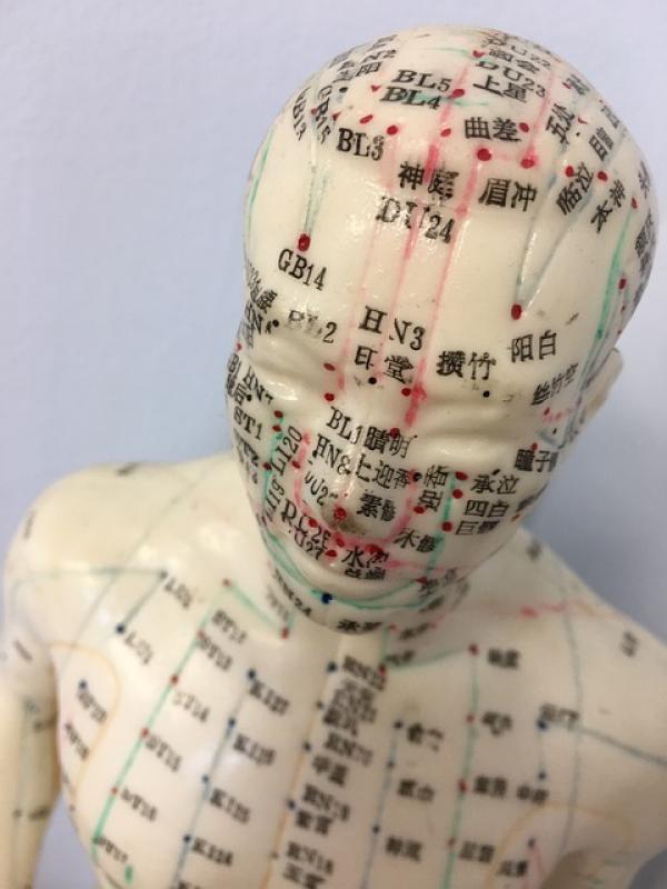 Le point d'acupuncture «Baihui» est situé au sommet du crâne. Il se trouve à l'intersection de la ligne médiane du crâne et d'une ligne reliant l'extrémité des deux oreilles. (Image : AnShenTCM/Pixabay)