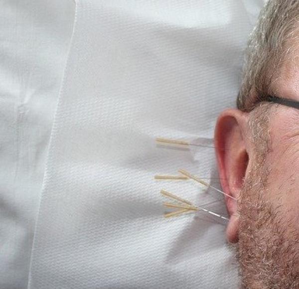 Les oreilles sont riches en points d'acupuncture, reliés à toutes les parties du corps. (Image :Walti Göhner/Pixabay)