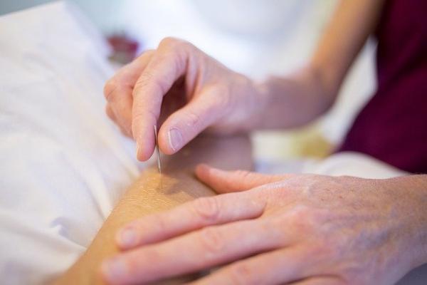 L'acupuncture permet de stimuler des zones précises de l'épiderme, appeléspoints d'acupuncture. (Image :5petalpics/Pixabay)